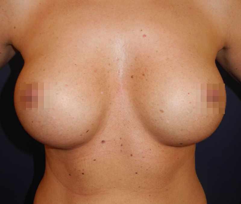 Nachher Bilder: Brustvergrößerung B-Lite Implantate - 450 Ccm - Platzierung Der Implantate Vor Dem Brustmuskel
