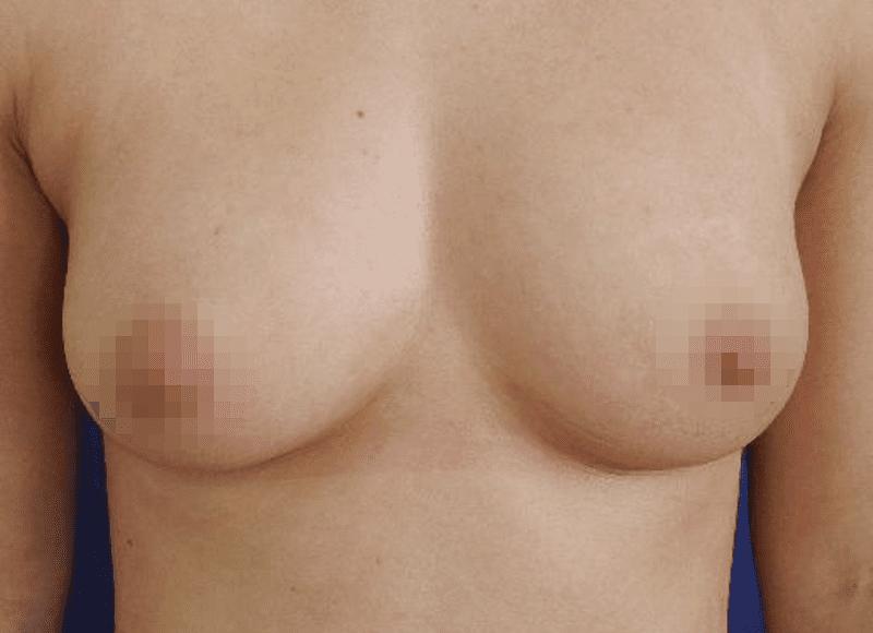 Brust Vergrößern Ohne Implantate: Bilder Der Brustvergrößerung Ohne Silikon - Hier Im Beispiel Eine Brustvergrößerung Mit Eigenfett Nach Einer Füllung Von Weniger Als A Auf A