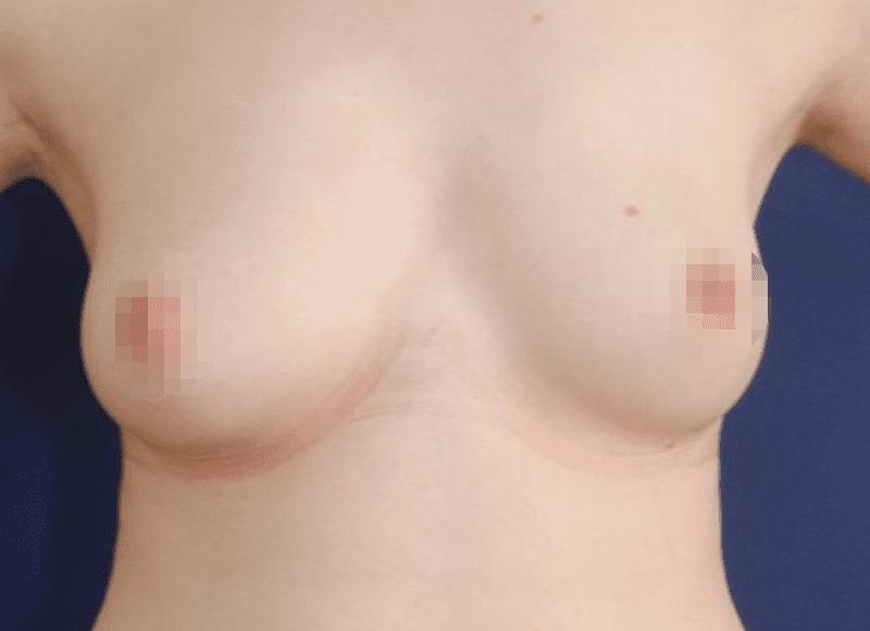 Hier Im Beispiel Eine Brustvergrößerung Mit Eigenfett Nach 2 Füllungen