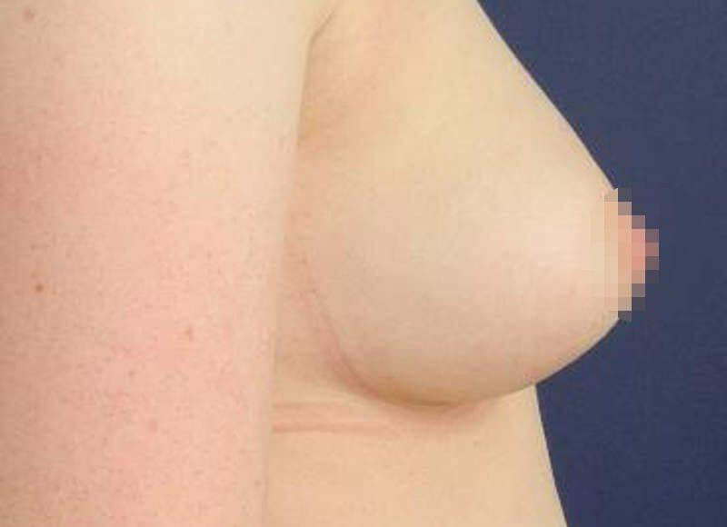 Brustvergrößerung Ohne Implantation: Hier Im Beispiel Ein Brust Profil Nach Einer Füllung