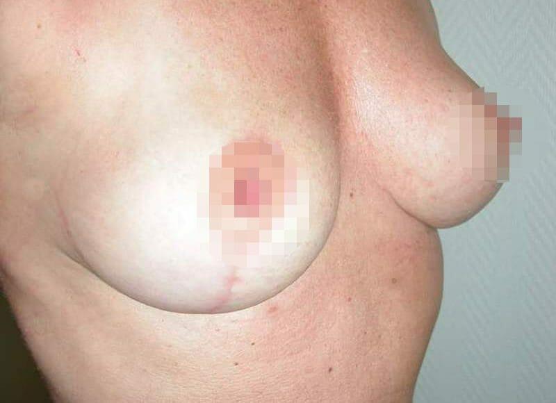 Bruststraffung In Hamburg - Vorher Nachher Bilder