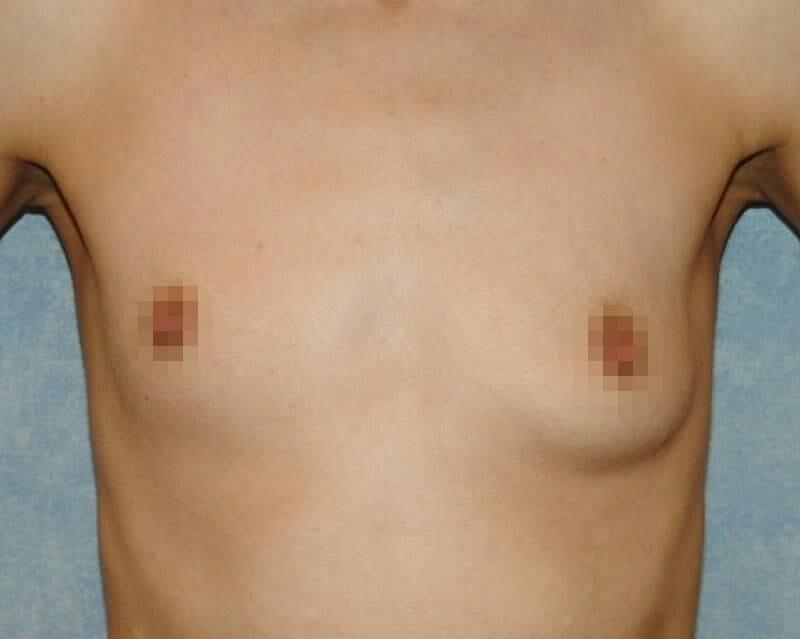 Brustasymmetrie - Beseitigung Der Asymmetrie Der Brust Vom Plastischen Chirurgen In Hamburg