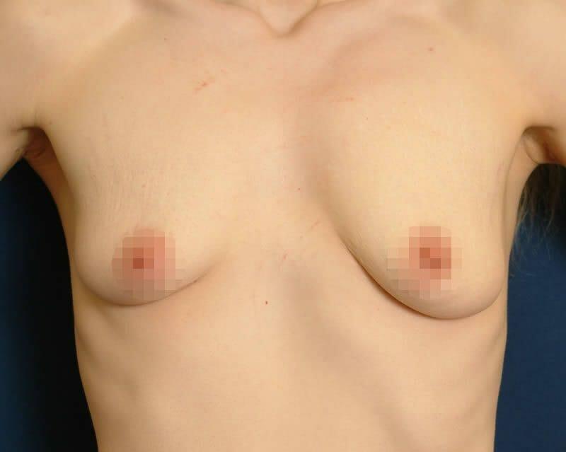 Brustasymmetrie - Behandlung In Der Klinik Für Plastische Und Ästhetische Chirurgie In Hamburg - Beseitigung Der Asymmetrie Der Brust