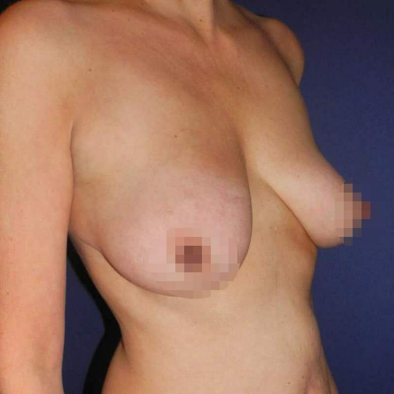 Bruststraffung In Hamburg - Nachher Bilder - Beispiele Einer Bruststraffung Vor Der Brust Op