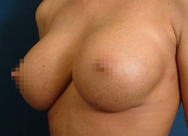 Brustvergrößerung Auf D Körbchen Mit Hochprofil Implantaten