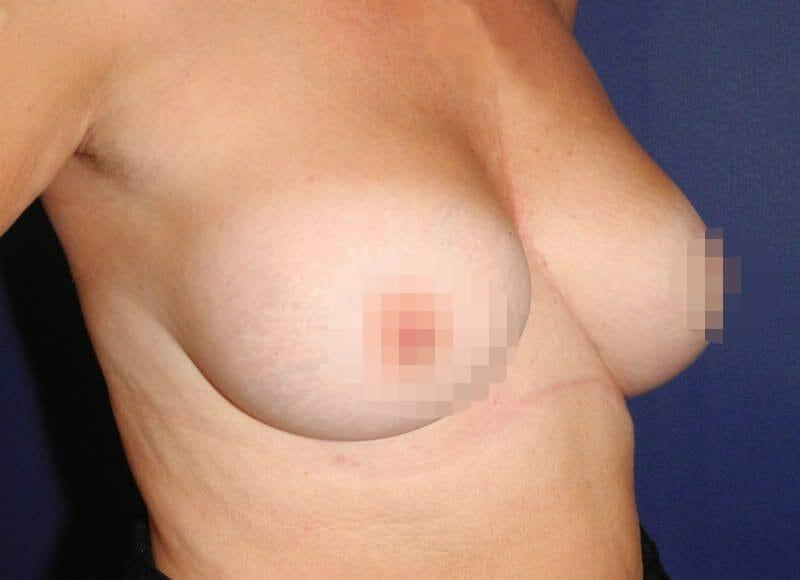 Brustvergrößerung Von B Auf D Körbchen Bei 50-Jähriger Frau