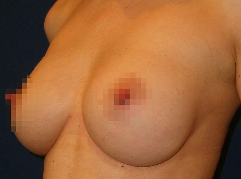 Brustvergrößerung Nach Schwangerschaft - B-Körbchen Mit Runden Implantaten