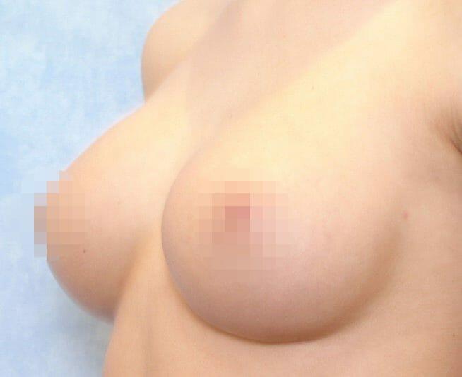 Brustvergrößerung Von A Auf B Mit Dekolletee Betonung Durch Brustimplantaten Mit Hochprofil