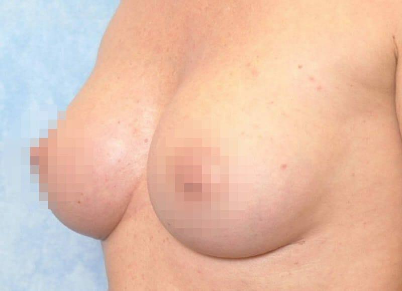 Brustvergrößerung Von A Auf C Körbchen Mit Runden 330 Ccm Implantaten Und Lage Vor Dem Brustmuskel