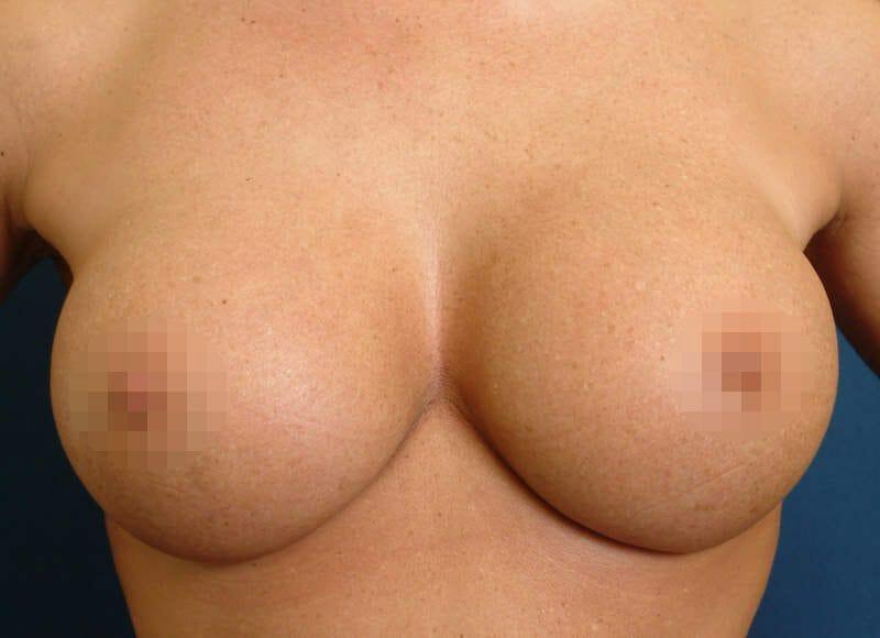 Brustvergrößerung Von B Auf D Vor Dem Muskel Bei Einer Jungen Frau