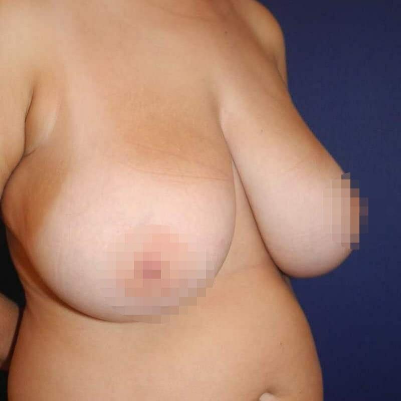 Beispiele einer Brustverkleinerung vor der Brust OP