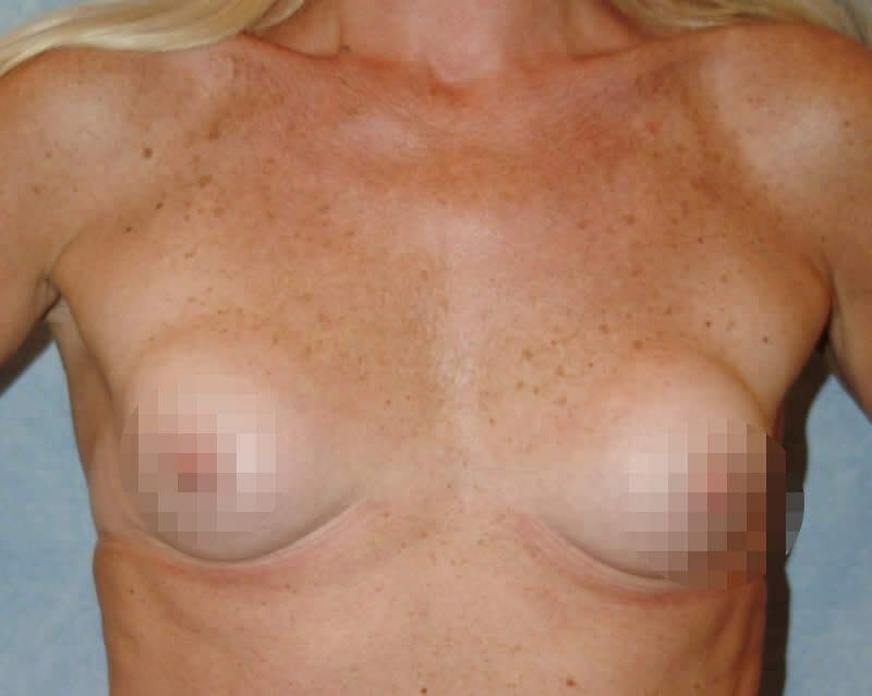 Beispiel Einer Beidseitigen Kapselfibrose