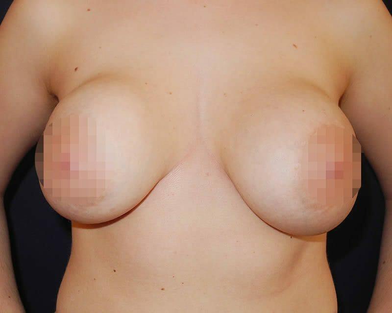 Hier Fand Eine Behandlung Der Kapselfibrose In Der Brust Im März 2014 In Hamburg Statt