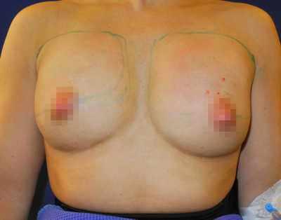 Eigenfett Brust OP Beispiel - direkt nach der OP