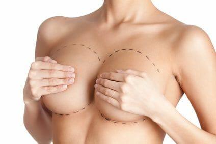 Brustvergrößerung ohne Silikon